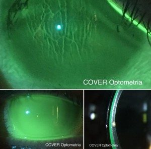 Córnea muy irregular con Queratocono avanzado e importantes estrías que disminuyen su visión a un 5%. En las dos imágenes inferiores , rehabilitación visual mediante la adaptación de lente RPG Escleral y visión del 90%.