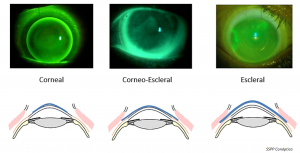 Diseños de lentes RPG para córnea irregular (SSPP Conoptica)