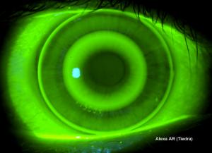 Lente de orto-k para miopía (arriba) y para hipermetropía (abajo)