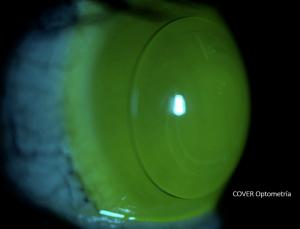 Paciente con Queratocono y operado con Anillos intraestromales. Después adaptadon con sistema mixto o piggy-back (lente blanda y sobre ella, lente semirrigída)